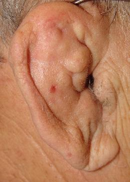 What's a simple, cheap treatment for my ear swelling?