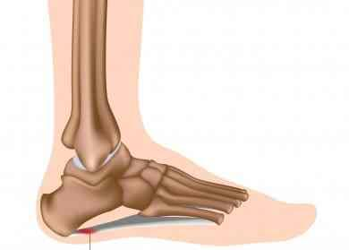 Plantar facities problem. Should i take an injection or be patient?