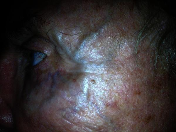 Ican see green veins on my face, in the undereye area and a big one on my rightcheek that wasn't there before.Is this a symptom of something dangerous?