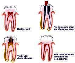 Tips for teeth root canal therapy?