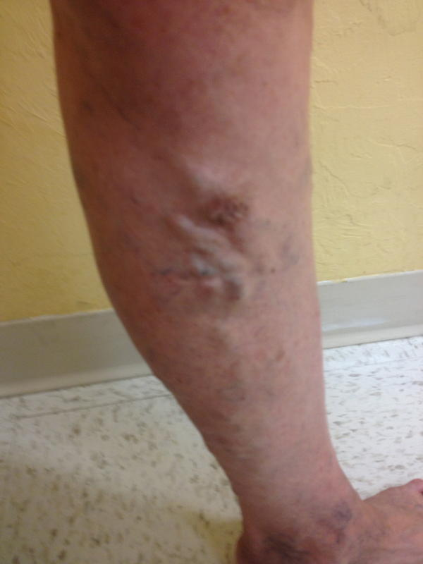 Leg lump - RightDiagnosis.com