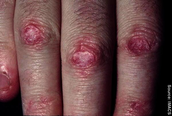 Can I use aczone dapsone gel on a scar burn? Will it work?
