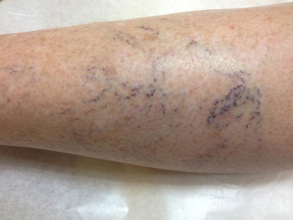 "Is there a natural way to get rid of spider veins? And why am I getting them? I am 22 years old, 5'4"" and 120lbs. &i am taking ocella (drospirenone and ethinyl estradiol) birth control."