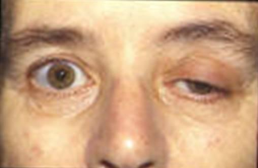 What kind of pills or treatment can somebody get for ptosis?