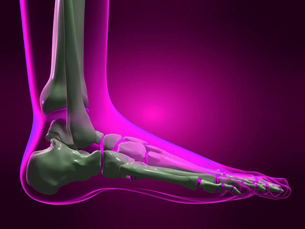 How can I speed up the healing process for my sprained ankle?