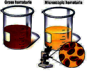 What does moderate blood in urine chemistry mean? Doctor said nothiing to worry about.