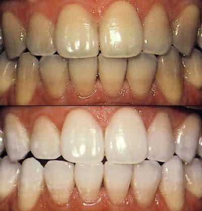 What's a natural cleaner for tea stained teeth?