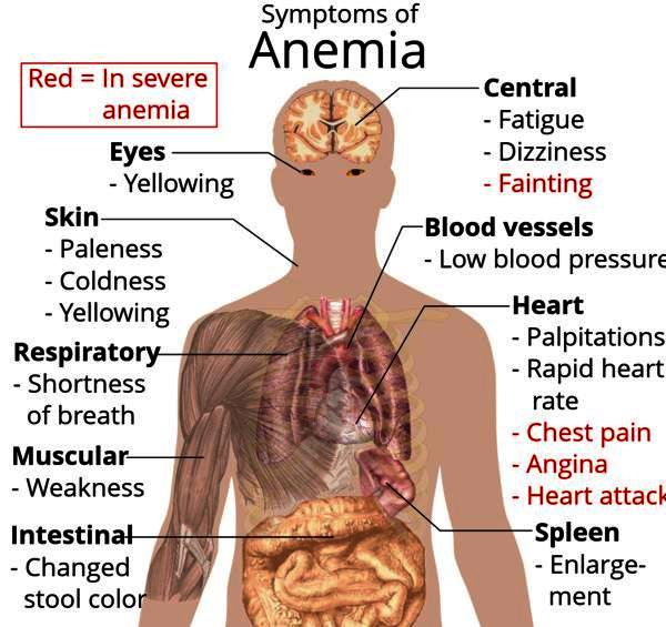 Is a abnormally light period a symptom of anemia?