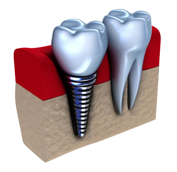 Will i need an implant after having a root canal?