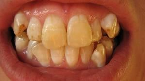 What causes  tooth discoloration  ?