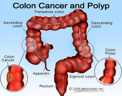 Blood In Stool Colon Cancer Pictures to Pin on Pinterest - PinsDaddy