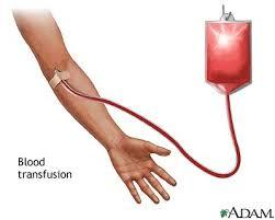Could you tell me what are requirements for blood transfusion?