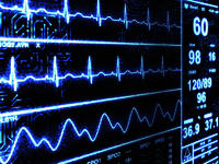 What Does Nonspecific T Wave Abnormalities In Lateral