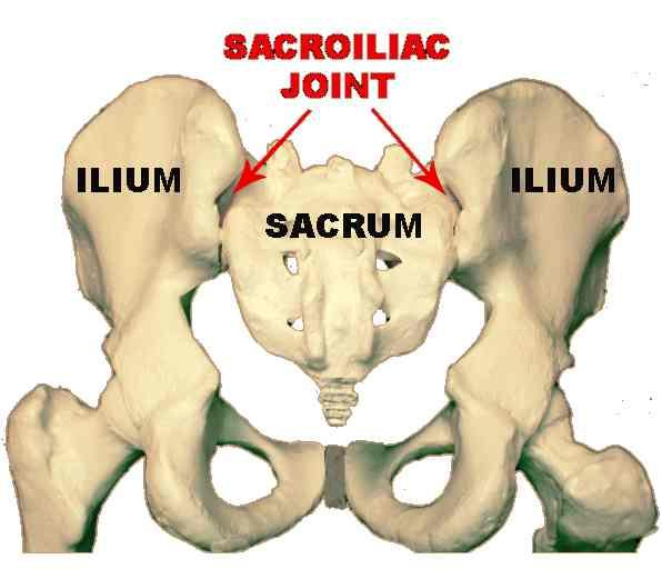 What exactly is sacroiliac strain? Please answer my question. And show me a map on the body for where exactly it is thanks.