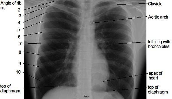 Might it be possible that a a chest X-ray tell if you smoke weed?