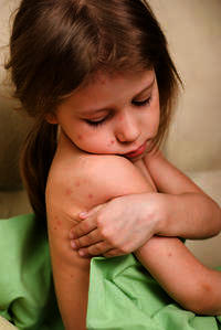 What can I do if my little girl have scar from chicken pox, is this normal?