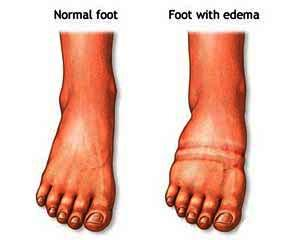My dad has lymphoma, he has recently been getting swollen feet and it last for days. Any way of treating that or preventing it? Why does it happen?