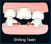 Tooth extraction, how long before teeth shift back?