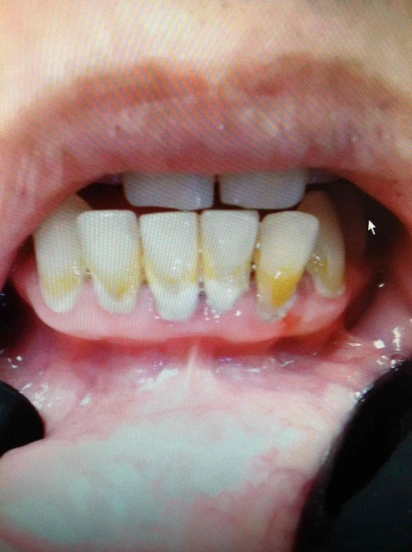 Hello i was diagnosed with severe gum disease.Will my teeth most likely fall out? Even if i get laser treatment done and scalping? If so how long?