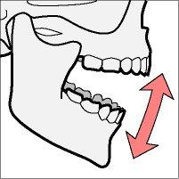 What to do about lock-jaw?