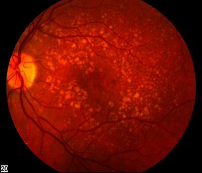 Is there any treatment for macular degeneration?