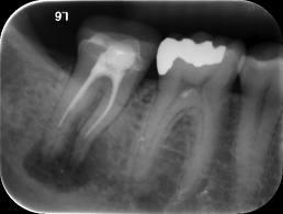 I got a root canal done years ago. The temporary filling fell out and never got replaced. Now I have infection. I am on amoxicillin. Its day 3 and my tooth still hurts. When will the pain go away?