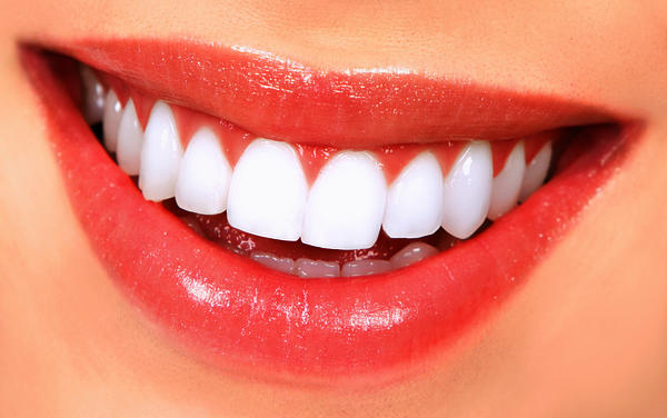 Will laser teeth whitening also whiten my crowns? I'm thinking about have my teeth whitened, but also have a few crowns. Will laser teeth whitening provide an even look, or does it react differently on surfaces that are not real tooth enamel?