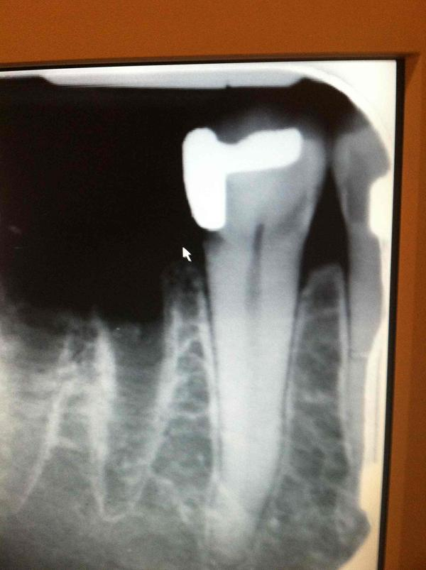 How long should I wait to get a root canal on molar after a part bony wisdom tooth extraction?