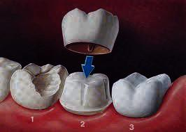 I have a root canal molar tooth that has 1/4 broken, can it still be crowned?
