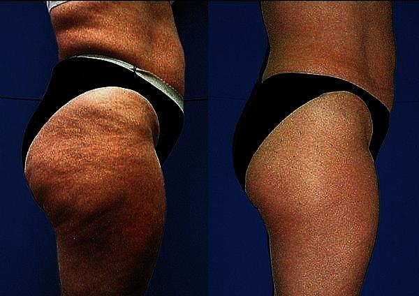 How to get rid of cellulite in legs and butt, help!?