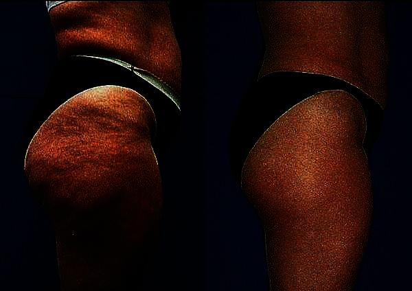 Is there a good cure for cellulite naturally?