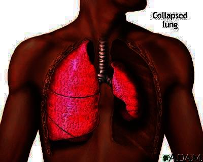 Docs can you explain what is a collapsed lung and how do they treat it?