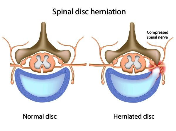 Do you think I should be looking for an orthopedic or neurologist doctor to operate on a herniated disk?