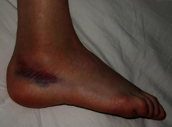 How do you take care of a sprained or kind of twisted ankle that makes it hurt to walk?
