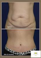 Post Pregnancy Belly Loose Skin Doctor Answers On Healthtap