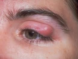 How long does heat boil on the eyelid take to go?