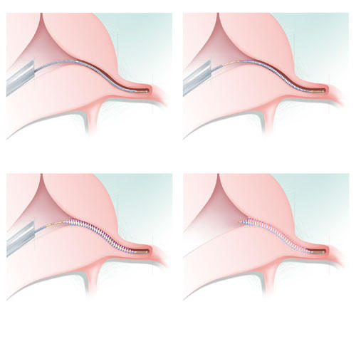 What is essure?