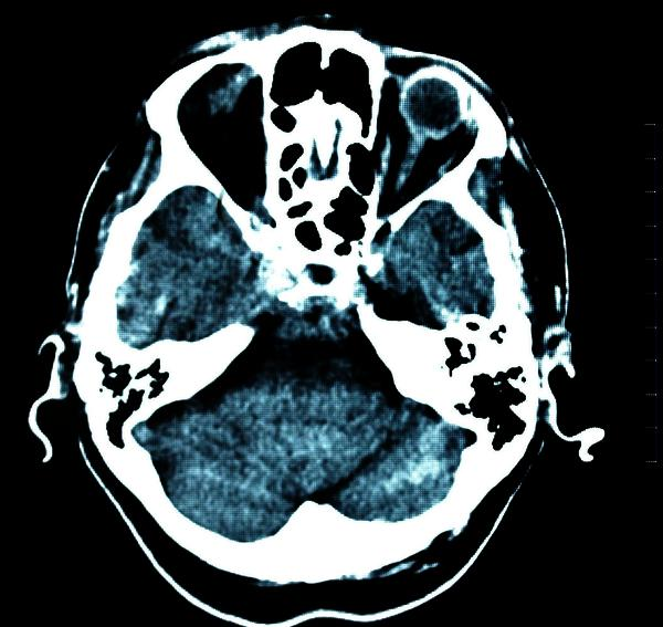 What is the normal amount of mucus thickening in CT scan?