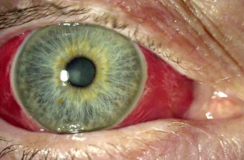 What happens if a popped blood vessel keeps coming back in your eye?