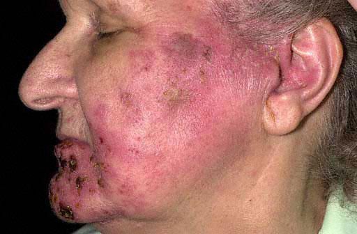 Can you get shingles on the lips?
