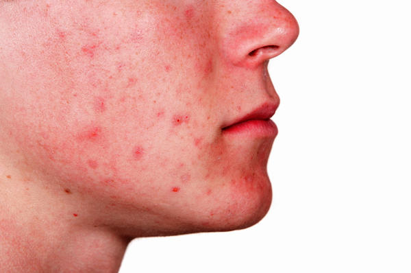 How long does it take for acne marks to clear?