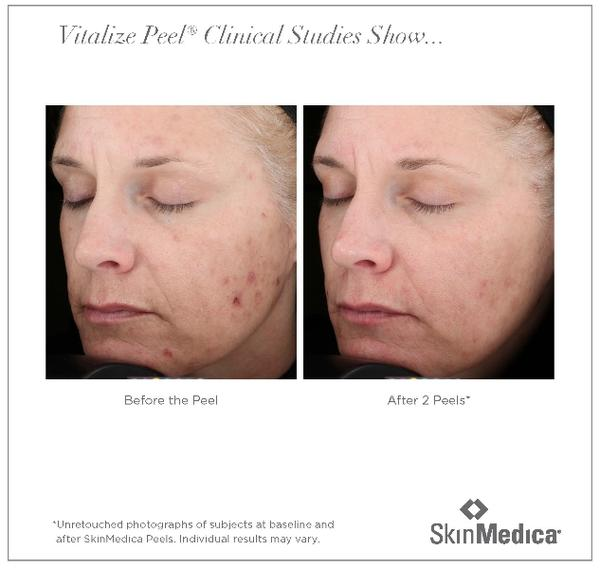 How effective are chemical peels for lines, scars etc?