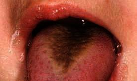 How to treat hairy tongue?