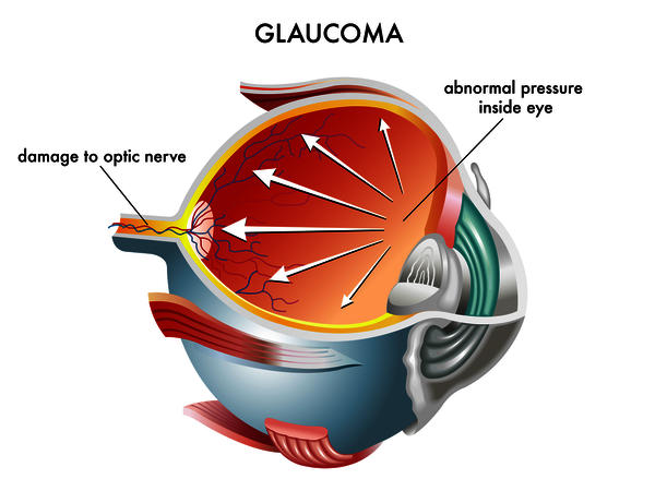 Could you get glaucoma while having peeipheral neuropathy, trig neuralgia, fibromyalgia, &cns inflammation?