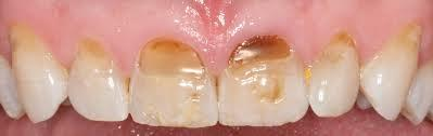 Why do some of my teeth have a slight browning by the gum line?