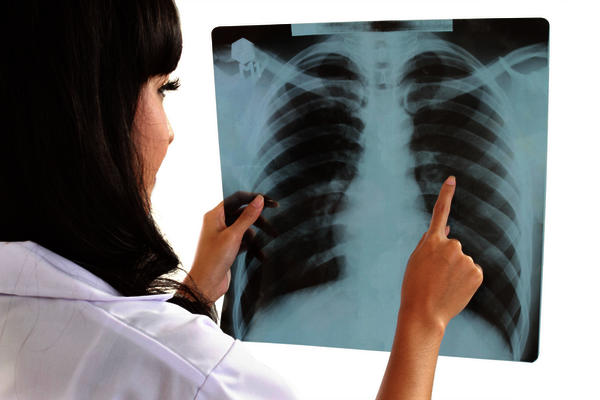 Is it ok to have an X-ray 2x a week?