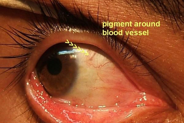 Why brown vessle in my eye?