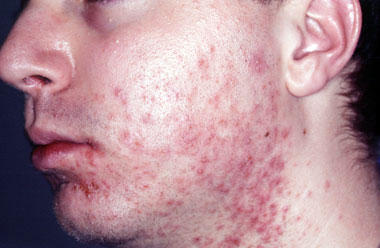 Acne Removal Cream Answers On Healthtap