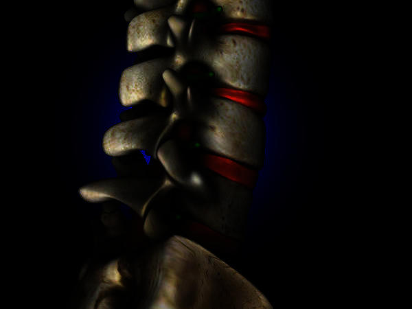 Is it effective to use epidural and cortisol shots for back pain?