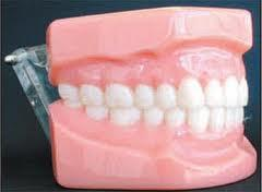 Do molars need to make direct contact on top of each other? Feel bottom molars moved in too much and also increased wear into enamel due to pressures